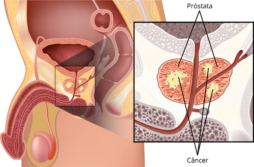 noutati in cancer prostata)