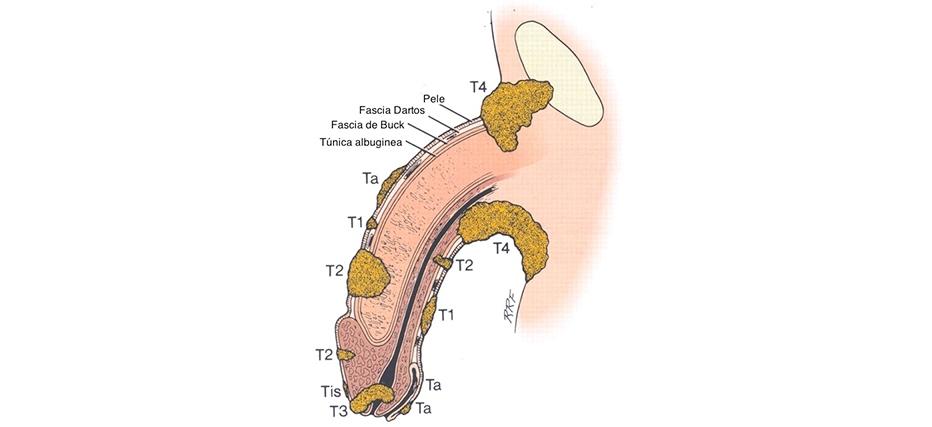 cancer-penis