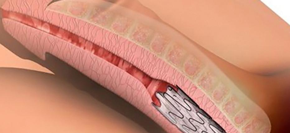 tratamento-estenose-uretra